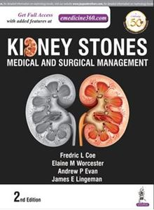 Picture of Kidney Stones Medicine and Surgical Management
